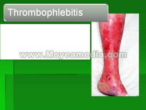 Trombosi di vene profonde ed embolia arterie polmonari