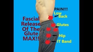 Gluteus Maximus Pain and Fascial Release