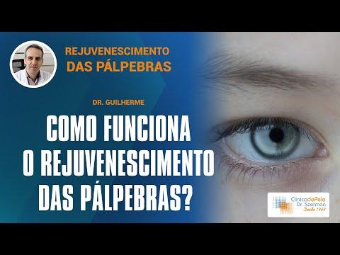 Smartxide Touch Dot Rf Videos Amp Demos Deka
