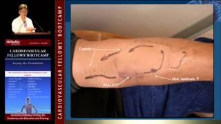 Fistula and Graft Placement (Eric K. Peden, MD)