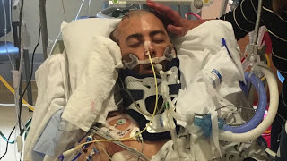Motorcycle Accident Road To Recovery (Brandon)