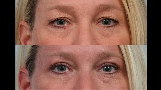 Female Upper Eyelid Sliver Blepharoplasty by Dr. Edwin Williams