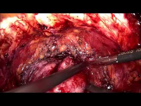 Eventuali segni della malattia di prostatite