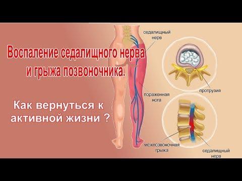 Воспаление седалищного нерва и грыжа позвоночника   Как вернуться к активной жизни?