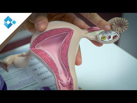 Wie auch die Operation an der Prostata