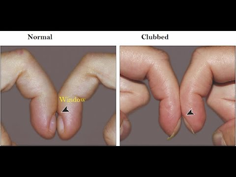 Reshaping nail treatment