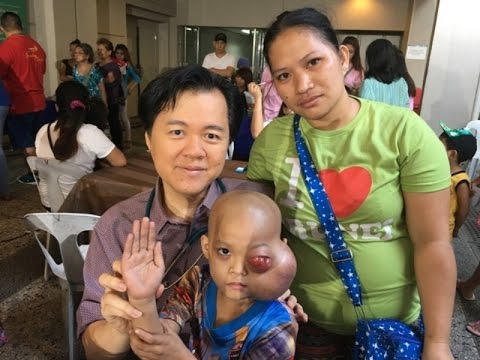 Aktwal na madagdagan ang suso nang walang surgery