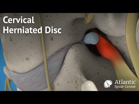 Verletzt alle Gelenke, die Ursache und Behandlung
