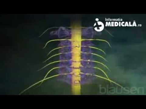 Semne radiologice ale bolii articulare