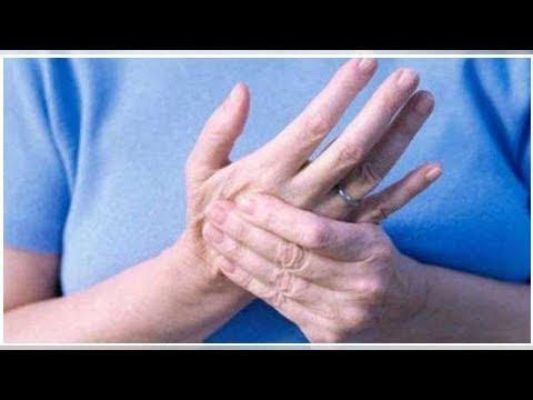 Programma di esercizio per lartrosi del ginocchio Video