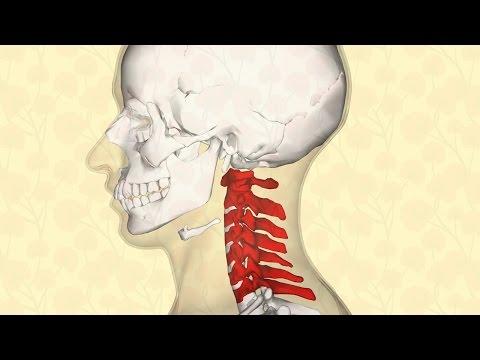 Disagio in cuore a causa di osteochondrosis