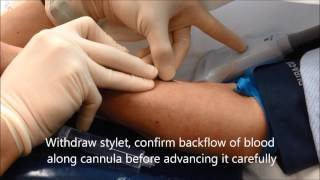 Essential guide to ultrasound-guided intravenous (IV) cannulation