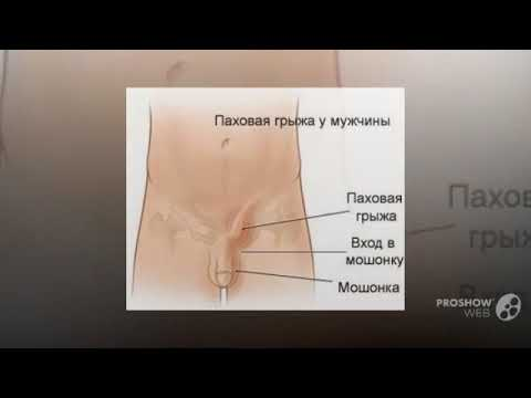 Лечение грыжи позвоночника l4-l5