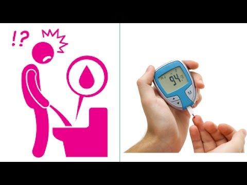 Diabete di tipo 2 e Eco