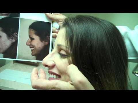 1 Week Post-Op Rhinoplasy Procedure