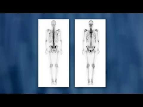 Мумиё для лечения простатита