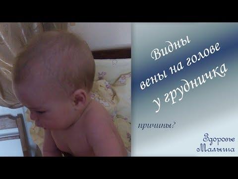 Почему видны вены на голове грудного ребенка