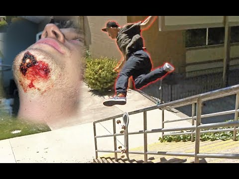 MY WORST SLAM EVER!! (broken elbow, wrist, 6 stitches, chipped tooth)