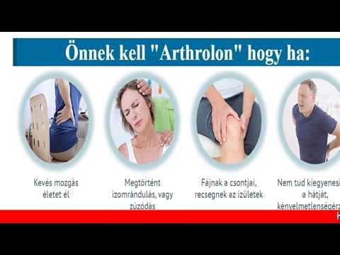 Ac ízületi arthrosis