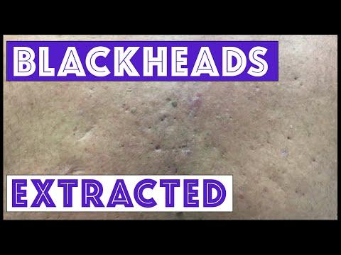 EXTREME Blackheads