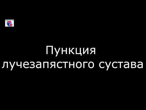 Пункция лучезапястного сустава - meduniver.com