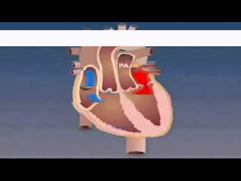 La nutrición hipertensión para la hipertensión
