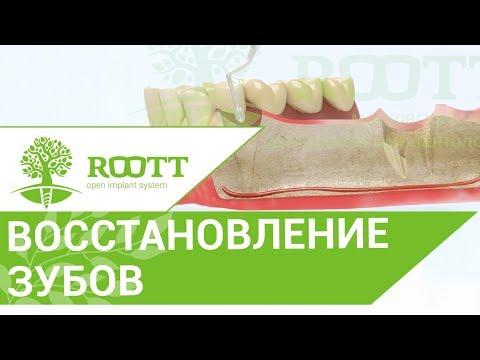 Классическая имплантация. 😷 Операция классической имплантации зуба сразу после удаления.