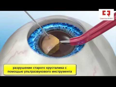 Операция по восстановлению зрения при близорукости цена