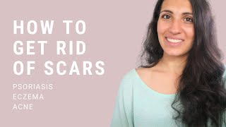 How To Get Rid of Eczema, Psoriasis & Acne Scars