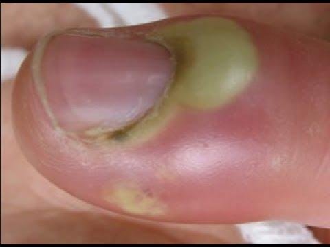 Comme guérir le microorganisme végétal des ongles le traitement les préparations bon marché mais eff