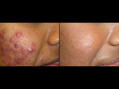 Le traitement du psoriasis boutonneux barbera