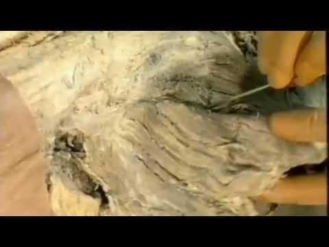 Zystoides Umstrukturierung des Knochengewebes des Hüftgelenks