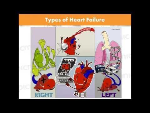 Étape 2 hypertension