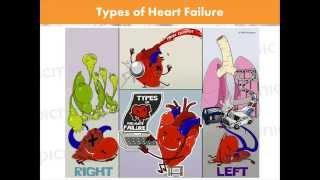 Heart Failure Made Easy   Picmonic Nursing Webinar