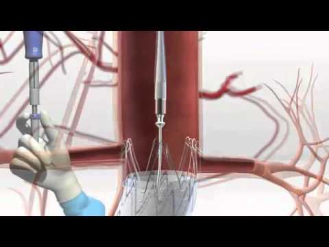 Endoprótesis MEDTRONIC