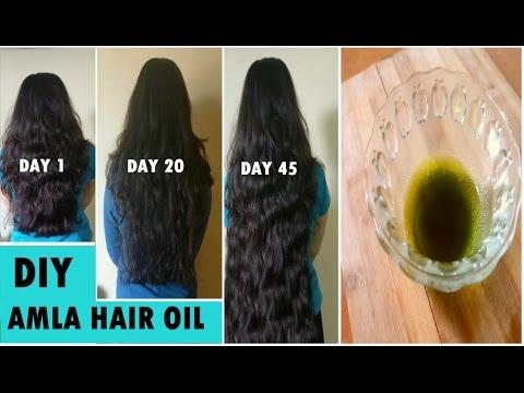 Remedium dla LOreal dla włosów kończy kupić
