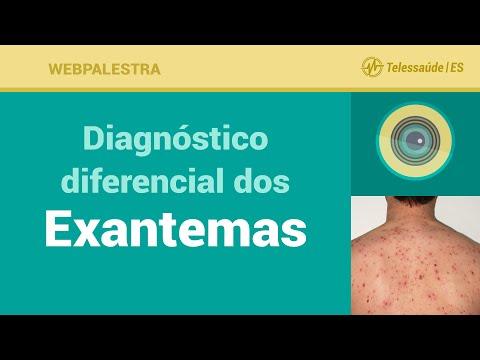 Histórico médico acadêmico da doença hipertensiva