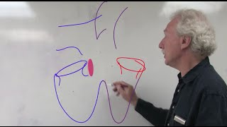 """""""Tetralogy Of Fallot: Basic Anatomy And Pathophysiology,"""" By Peter Lang, MD, For OPENPediatrics"""