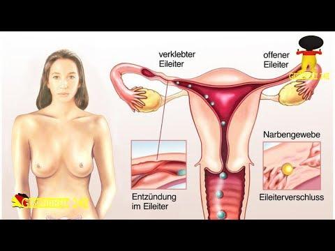 Wirksam bei der zervikalen Osteochondrose