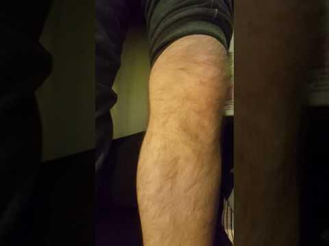 Niż w leczeniu stawów posiniaczoną nogę