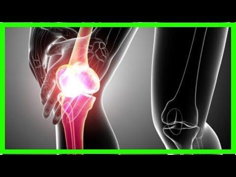 Die Gelenkentzündung bei der Schuppenflechte