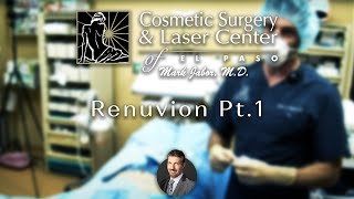 Dr. Jabor-Renuvion Pt.1