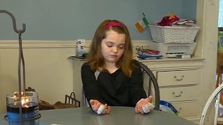 "Girl severely burned by homemade ""slime"""
