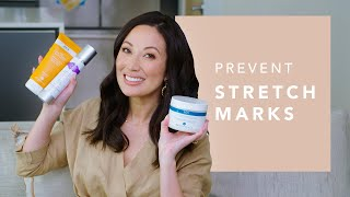 How I Prevent Stretch Marks with Body Skincare Products | Susan Yara