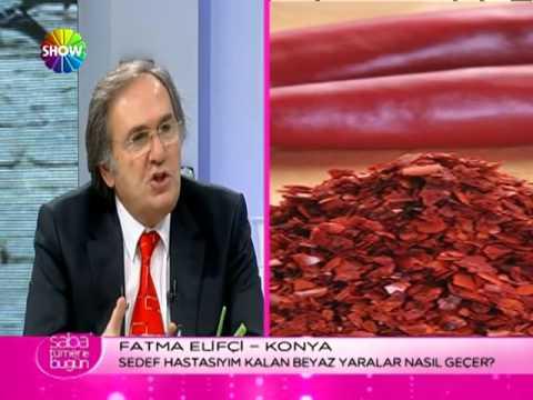 Topuk Dikeni Nedir Topuk Dikeni Belirtisi Tedavisi İbrahim Saraçoğlu-Topuk Dikenine Çözüm