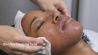 Skin Laundry Ultra Fractional facial