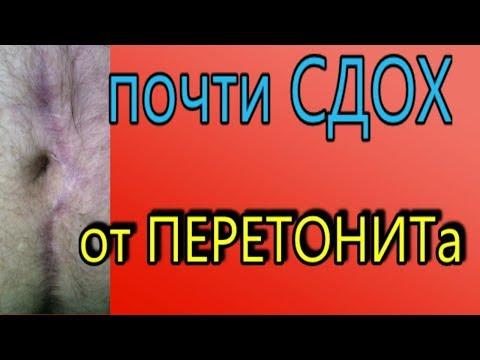 Гнойный ПЕРИТОНИТ. чуть не УМЕР от аппендицита.