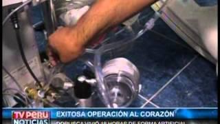 TV Peru 18/01/2015 - Vivió 18 horas de forma artificial