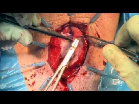 Uretroplastyka z zaoszczędzeniem mięśnia opuszkowo-gąbczastego