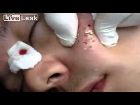 Video Watch How To Treat Forehead & Chin Breakouts - Acne On Forehead